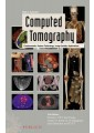 Tomography - Medical imaging - Other Branches of Medicine - Medicine - Non Fiction - Books 2